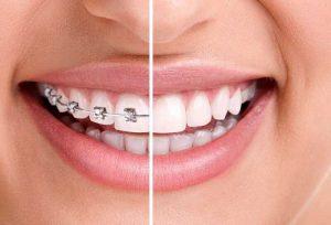 Các giai đoạn niềng răng khểnh theo tiêu chuẩn BỘ Y TẾ