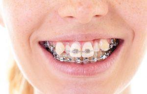 Niềng răng khểnh ít xâm lấn