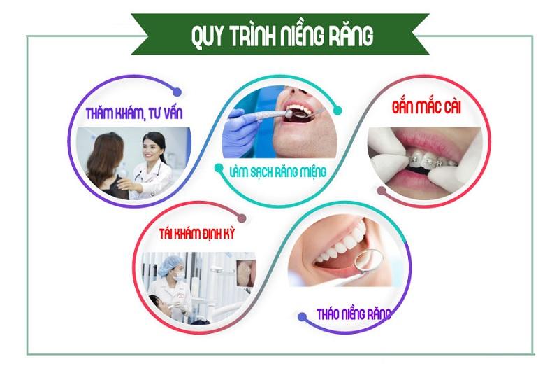 Quy trình niềng răng khểnh tiêu chuẩn nha khoa