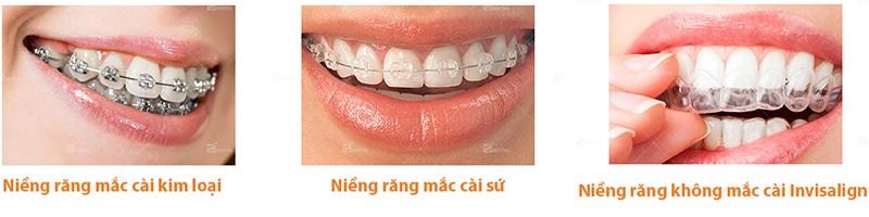 Một số phương pháp niềng răng thường được chọn