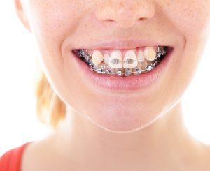 Niềng răng khấp khểnh có đem lại hiệu quả hay không?