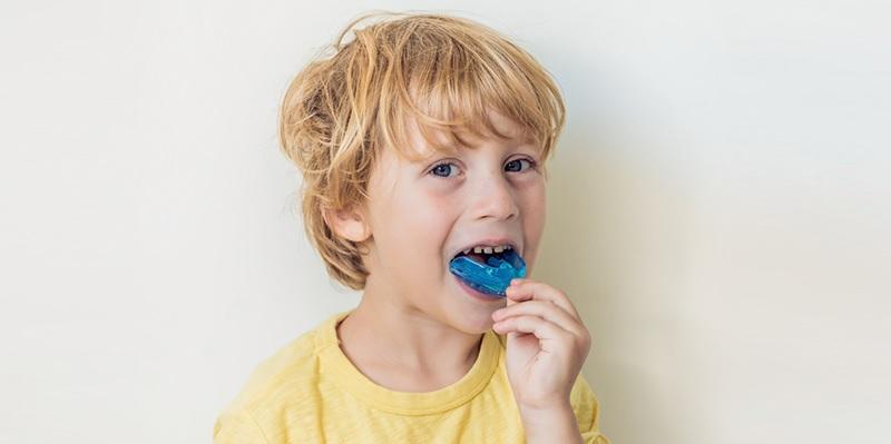 Hàm trainer cho bé có tác dụng điều chỉnh một số lệch lạc nhỏ ở nhóm răng trước