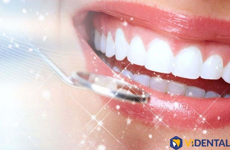 Công nghệ bọc răng sứ SUPERPLAS 6D độc quyền tại Vidental đang được khách hàng săn đón