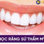 Bọc răng sứ thẩm mỹ tại Viện Nha khoa Vidental
