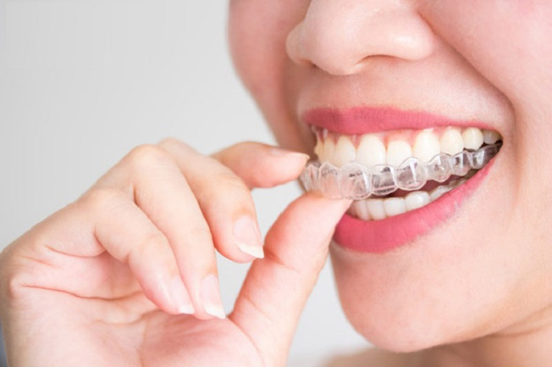 Niềng răng hô bằng nhựa sử dụng bộ khay bằng nhựa dẻo trong suốt