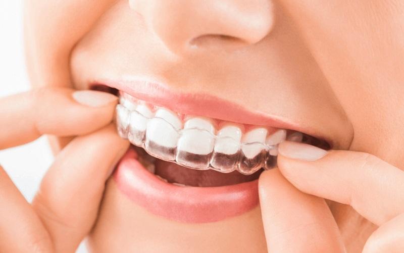 Niềng răng hô bằng nhựa có thực sự hiệu quả như bạn nghĩ?
