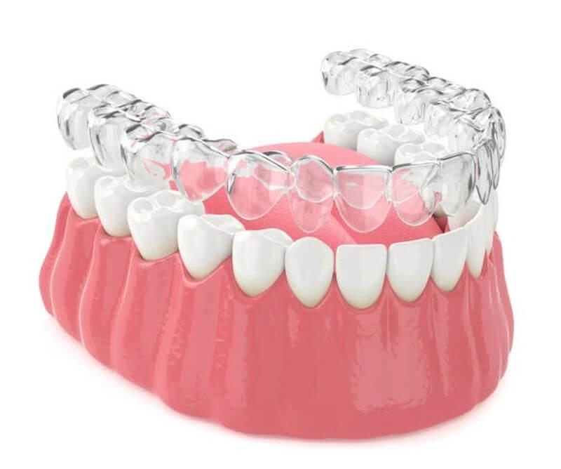 Niềng nhựa 3D Clear Aligner cho các trường hợp răng khuyết điểm nhẹ