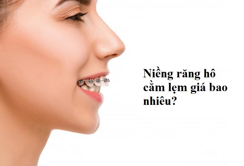 Niềng răng hô cằm lẹm giá bao nhiêu?