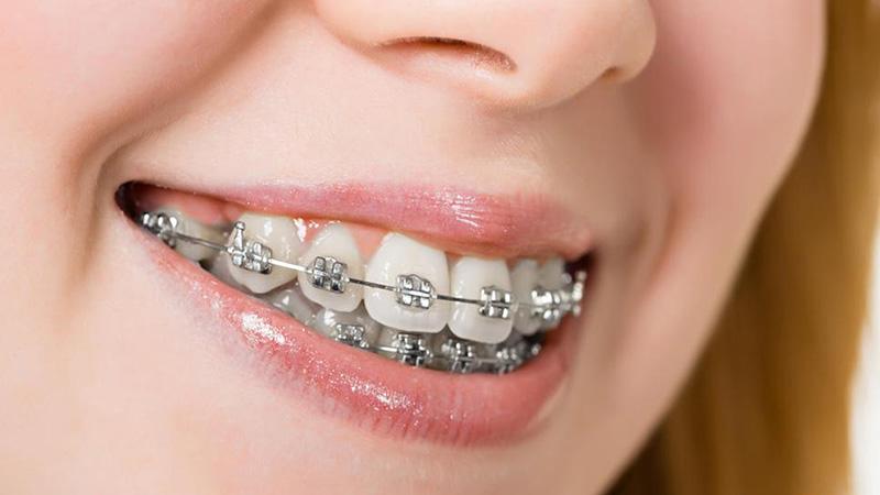 Kỹ thuật niềng răng hết cằm lẹm đúng hay không?