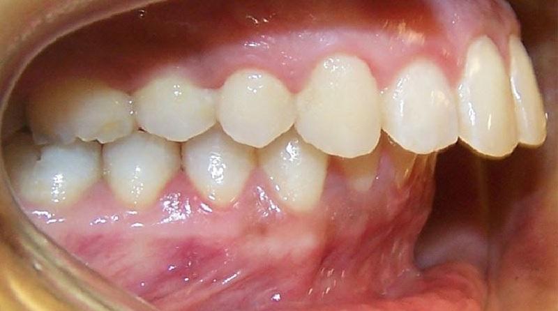 Tình trạng răng hô hai hàm khi cắn chặt không khớp lại với nhau