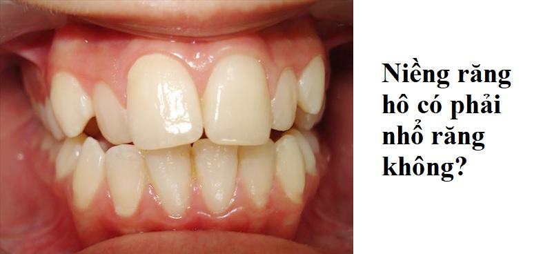 Liệu rằng niềng răng hô có phải nhổ răng không?