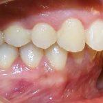 Niềng răng hô không nhổ răng đúng hay không? Địa chỉ khắc phục uy tín