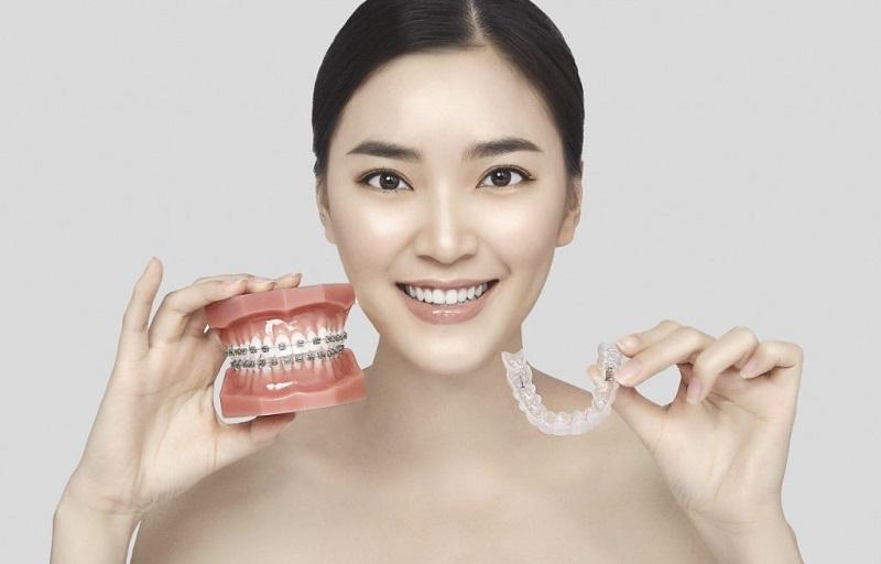 Kỹ thuật niềng răng 3D Clear là kỹ thuật sử dụng các khay niềng trong suốt