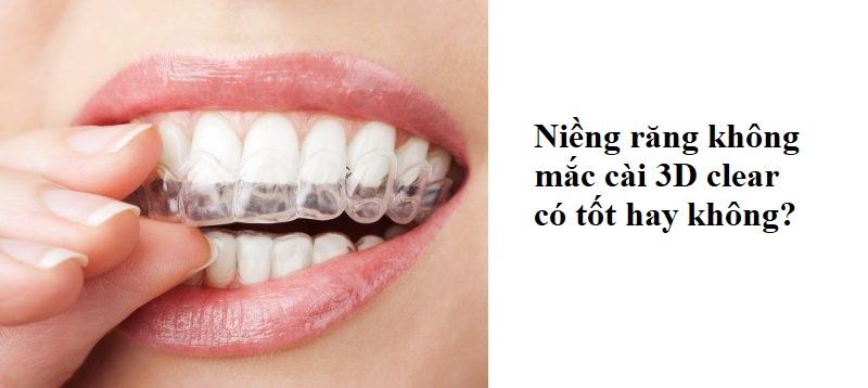 Thực tế niềng răng không mắc cài 3D clear có tốt hay không?