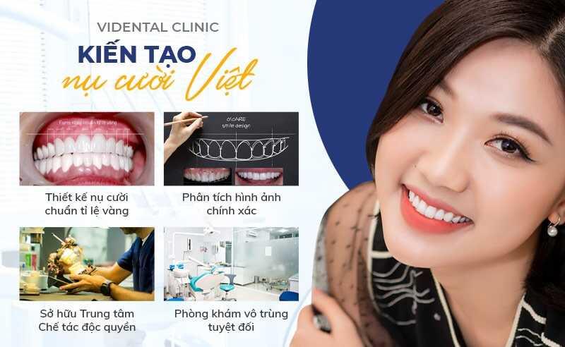 Niềng răng 3D Clear uy tín tại Trung tâm nha khoa thẩm mỹ Vidental
