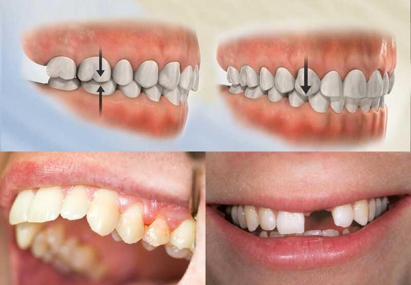 Một số tác hại của niềng răng trainer không đúng cách