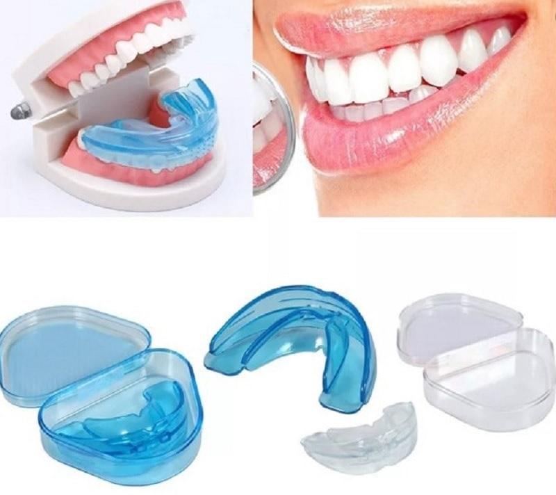 Các mẫu niềng răng trainer dành cho người trưởng thành