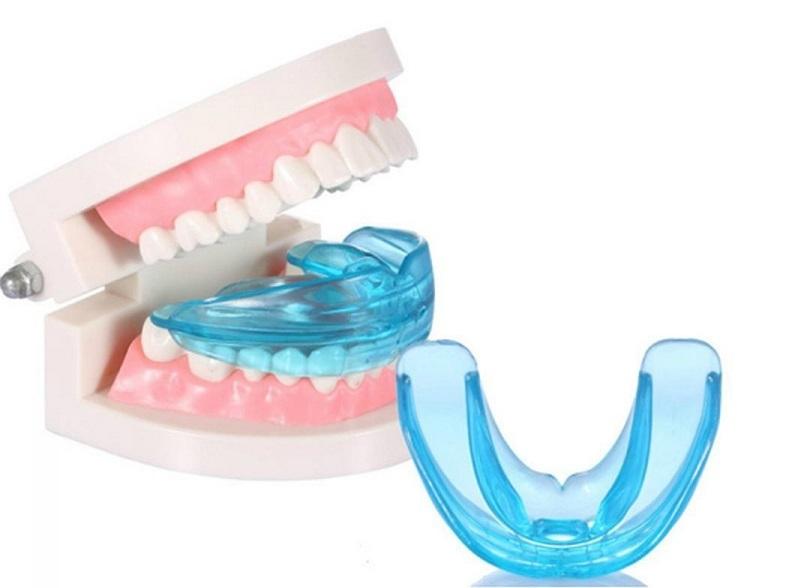 Niềng răng trainer tại nhà là bước đột phá của nha khoa chỉnh hình