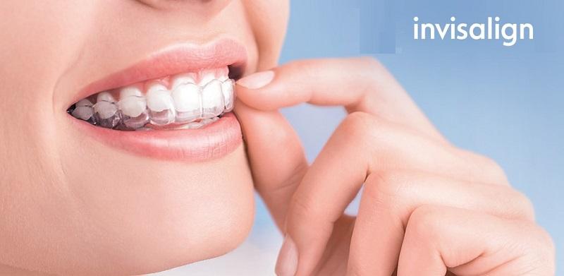 Invisalign là kĩ thuật niềng răng sử dụng các khay niềng trong suốt
