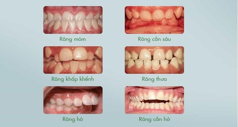 Trường hợp nên niềng răng vô hình Invisalign