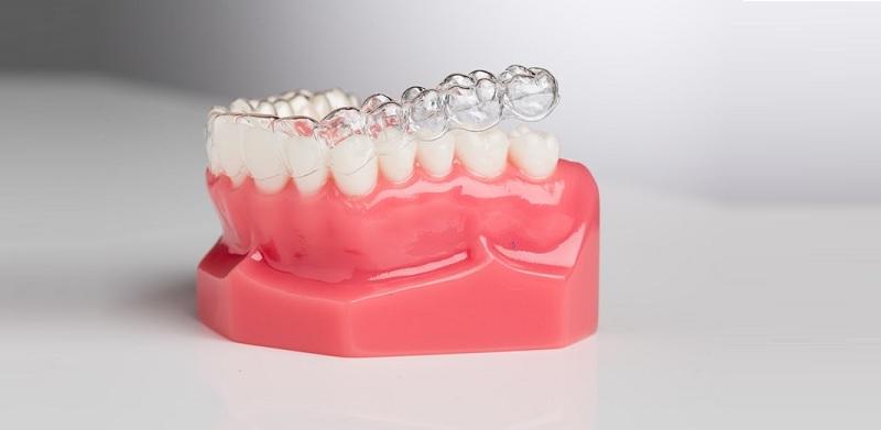 Niềng răng Clear Aligner là phương pháp chỉnh nha không mắc cài phổ biến