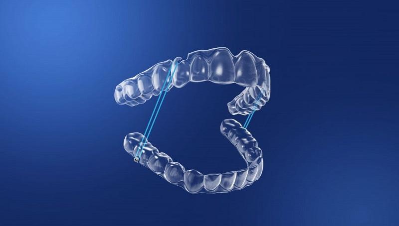 Niềng răng vô hình Zenyum là phương pháp chỉnh nha hiện đại