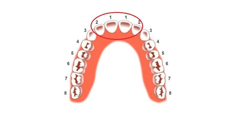 Có 4 răng cửa trên 1 hàm răng