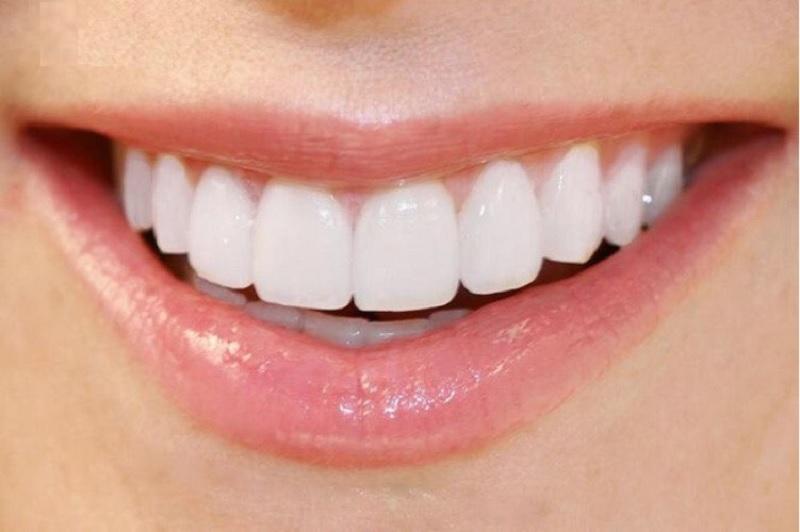 Vẻ đẹp cuốn hút của người có răng cửa đẹp
