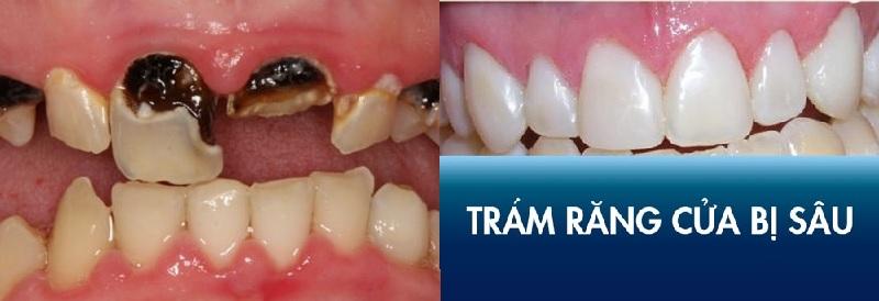 Trám răng mang lại hiệu quả về thẩm mỹ cao nhất cho răng sâu