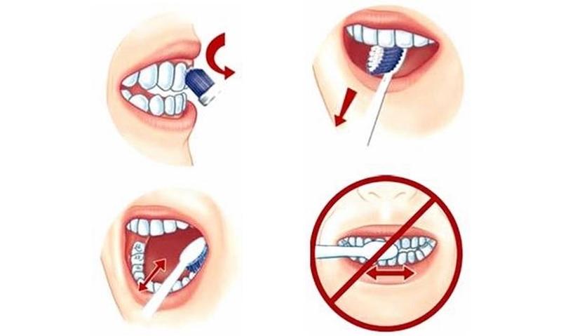 Vệ sinh răng miệng đúng cách, kỹ càng để bảo vệ răng khỏe đẹp mỗi ngày