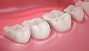 Răng hàm và những vấn đề liên quan đến răng hàm