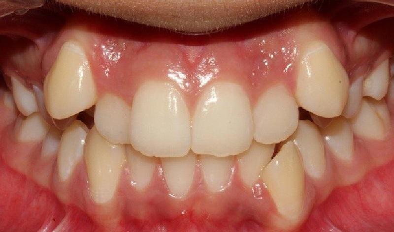 Răng khấp khểnh là hiện tượng răng mọc lệch vị trí