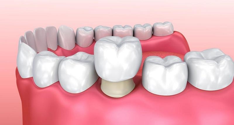 Phương pháp bọc sứ cho răng
