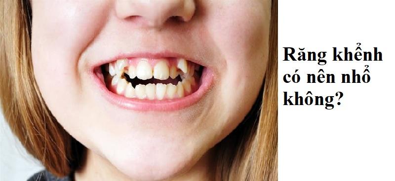 Răng khểnh có nên nhổ không?