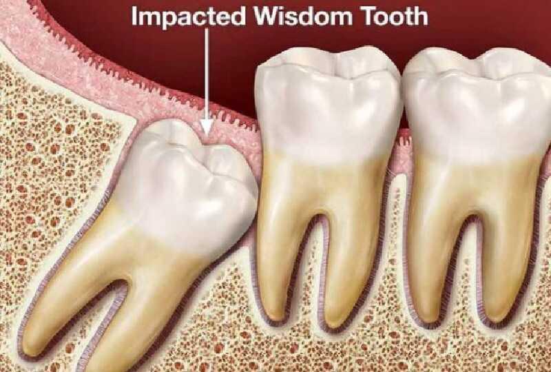Với nhiều người, răng số 8 không có tác dụng thẩm mỹ hay chức năng nhai