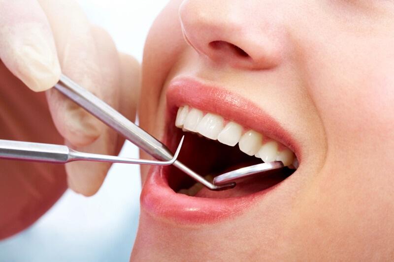 Có nên nhổ bỏ răng khểnh hay không?