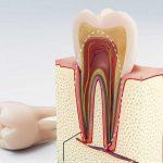 Tủy răng và tầm quan trọng của tủy răng với sức khỏe con người