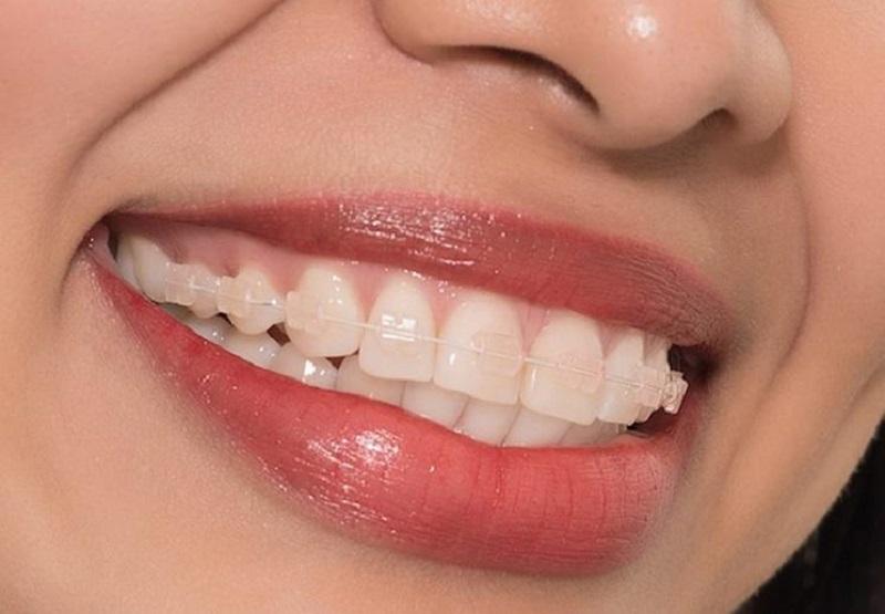 Niềng răng mắc cài pha lê trong suốt đem lại tính thẩm mỹ cao