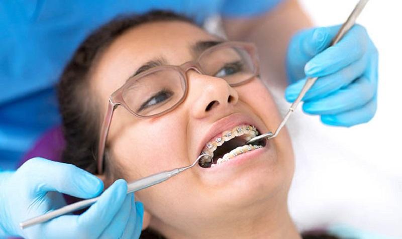 Lựa chọn cơ sở nha khoa uy tín để niềng răng đẹp không hóp má