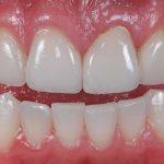 Nướu răng là gì? Giải đáp các thắc mắc liên quan đến nướu răng