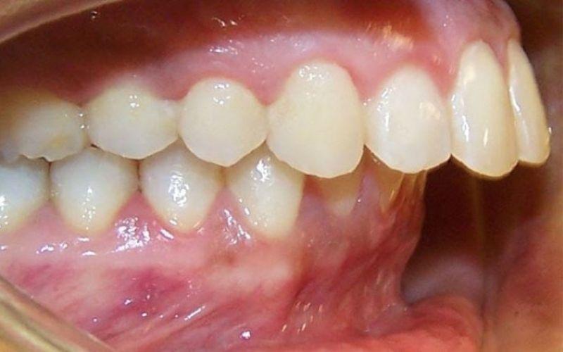 Tình trạng răng hô vẩu điển hình