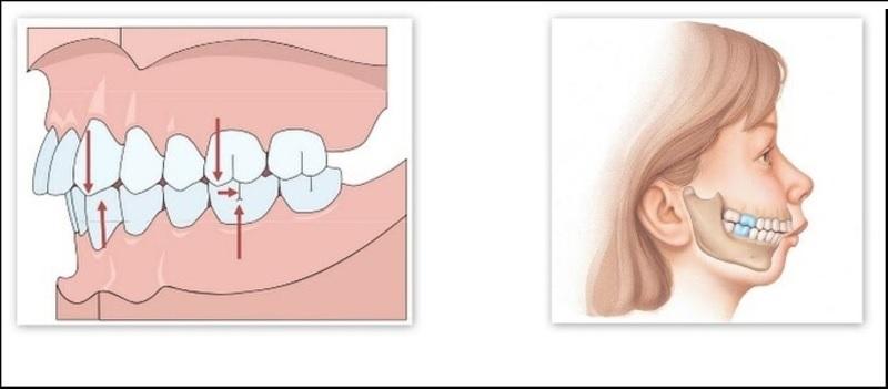 Hình ảnh trường hợp răng vẩu hàm trên