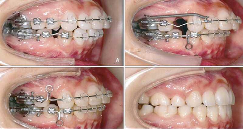 Phương pháp niềng răng cải thiện vẩu xấu xí