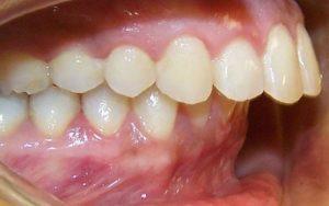 Răng hô và 6 thông tin quan trọng nhất định bạn phải nắm rõ