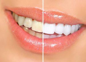 Các phương pháp tẩy trắng răng đều đảm bảo an toàn, hiệu quả